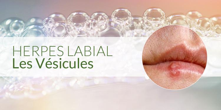 vésicules herpes labial
