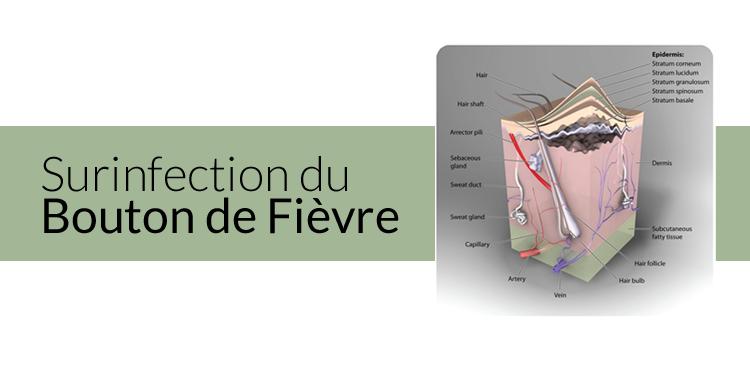Surinfection bouton de fièvre